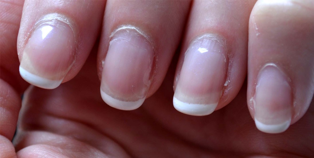 mes faux ongles jaunissent